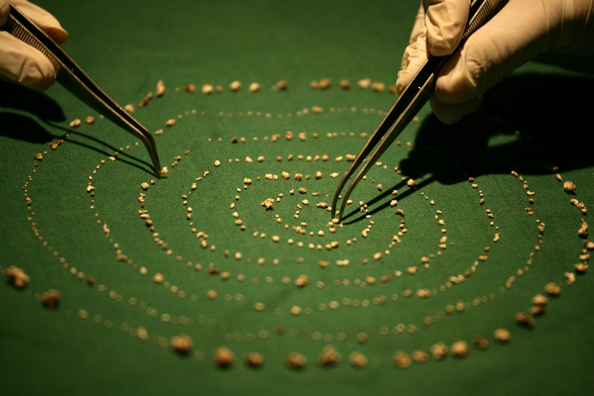 შვიდი წლის ინდოელი ბიჭი, რომელსაც პირის ღრუში 526 კბილი აღმოაჩნდა