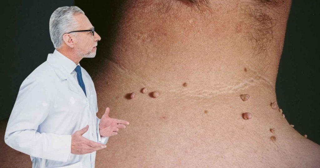 პაპილომა ვირუსის წინააღმდეგ ხალხური მედიცინა სასწაულებს ახდენს